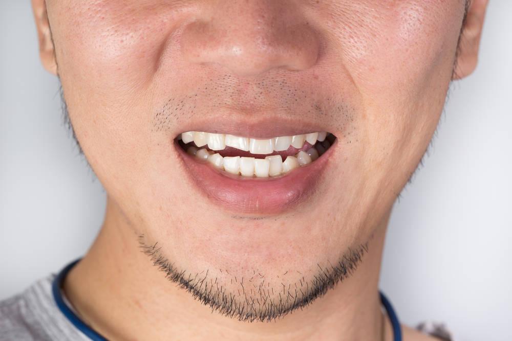 Cómo actuar ante un traumatismo dental.
